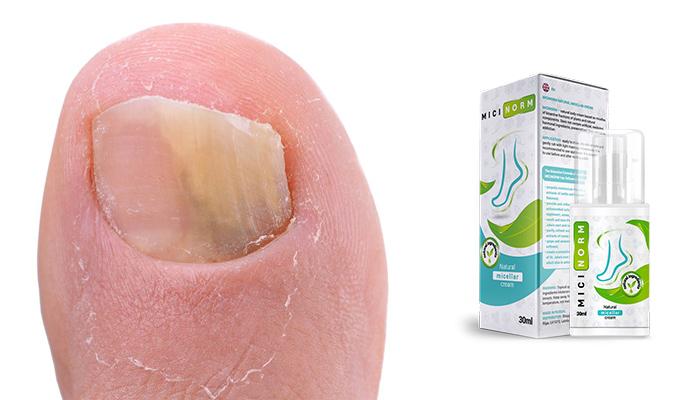 Micinorm: zbaví оod kožnej plesni len za 20 dní a zabrániť opakovanej infekcii