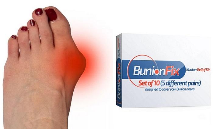 BunionFix z valgusovej deformity nohy: profesionálna ortopedická sada pre liečbu vbočeného palca!