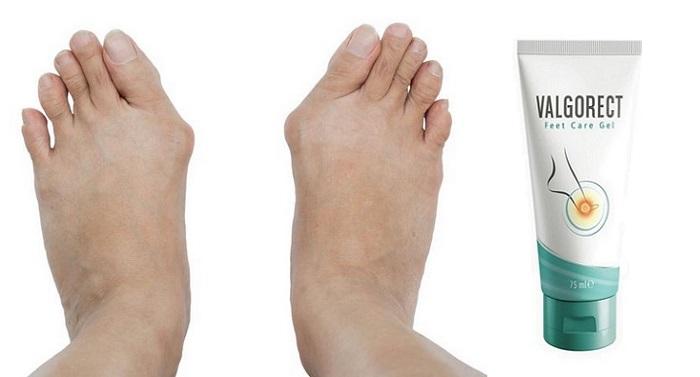 Valgorect z deformity nohy: zbavte sa hrudiek na nohách bez operácie!